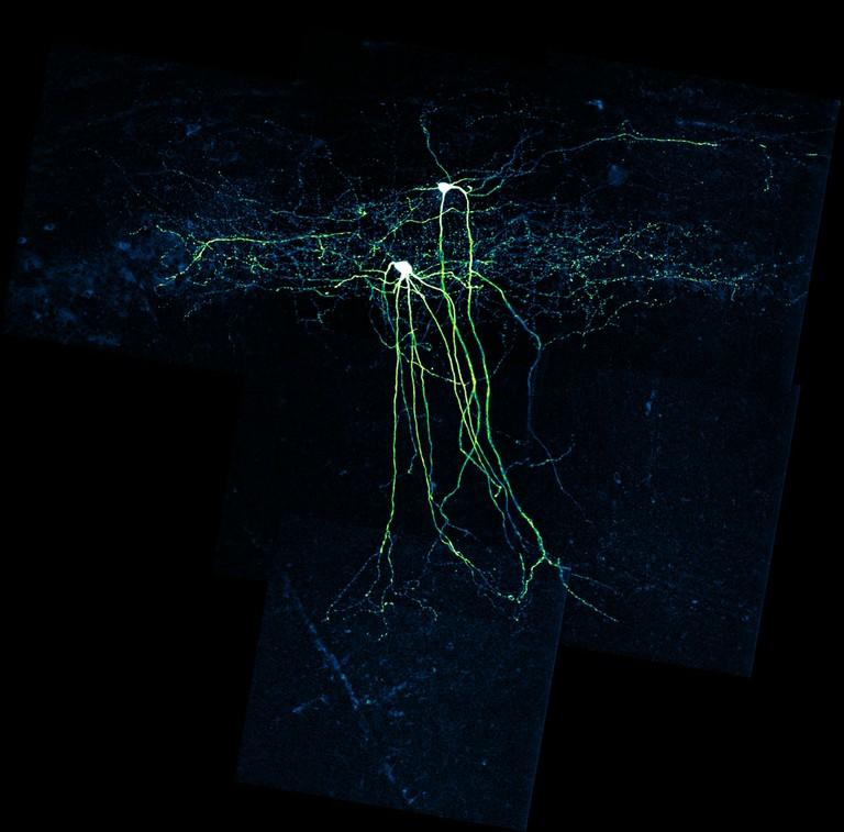 interneuron neu.jpg Interneuronen (im Foto grün eingefärbt) dämpfen mit ihren Axonen (den horizontalen Strukturen in der Abbildung) die Aktivität von bestimmten Hirnbereichen. Wenn sie nicht richtig funktionieren, kann es zu epileptischen Anfällen kommen. Der Wirkstoff Carbamazepin hilft bei dieser Sorte von Epilepsien nicht; er kann die Anfälle sogar noch verstärken. © Leonie Pothmann