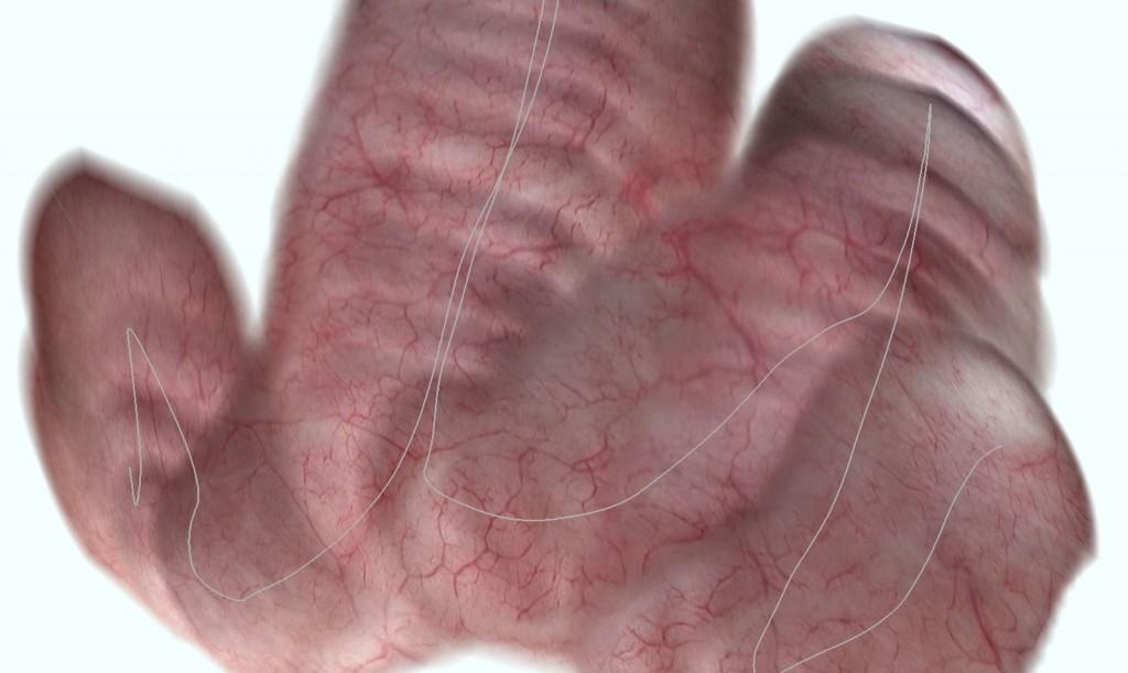 Die Software errechnet aus endoskopisch aufgenommenen Bildern der Blaseninnenwand eine Panoramaansicht. Optio- nal kann auch dargestellt werden, welchen Weg der Arzt mit dem Endoskop genommen hat (graue Linie). © Fraunhofer IIS