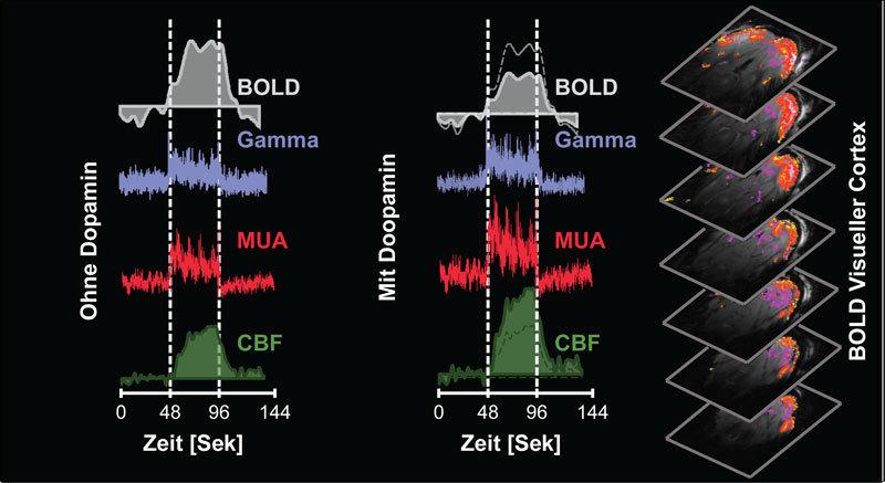 Dopamin verändert das sogenannte BOLD-Signal im MRT: Links: Ist die Sehrinde des Gehirns aktiv, steigt ohne Dopamin das BOLD-Signal an. Auch die Aktivität der Gamma-Wellen, einzelner Gruppen von Nervenzellen (MUA) sowie des Blutflusses in dem Areal (CBF) nimmt zu. Mitte: Unter dem Einfluss von Dopamin verringert sich das BOLD-Signal. Die Gamma-Wellen und die Aktivität der Nervenzellen bleibt jedoch konstant. Der Blutfluss steigt sogar. Rechts: Aktive Regionen (rot) in der Sehrinde des Gehirns. © MPI f. biologische Kybernetik/ D. Zaldivar