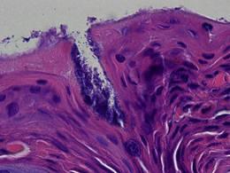 Auf der Abbildung ist die Haut eines Patienten mit Neurodermitis zu sehen (histologische Färbung), die mit Staphylococcus aureus Bakterien (dunkle Punkte auf der Oberfläche und in der Kerbe) bedeckt ist. © Y. Skabytska / Universität Tübingen