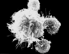 T-Zellen im Kontakt mit einer dendritischen Zelle (groß, im Zentrum)  © DKFZ / Markus Feuerer