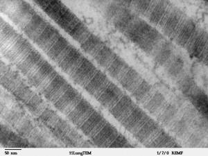 Elektronenmikroskopische Aufnahme von Kollagenfasern. © public domain.