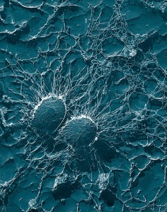 Staphylococcus aureus. © public domain.