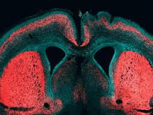 Großhirnrinde eines Mausembryos. Die Zellkerne sind blau gefärbt und tiefer liegende Nervenzellen sind in rot zu erkennen. Unter dem Einfluss des menschenspezifischen Gens ARHGAP11B haben sich auf der rechten Hirnhemisphäre Faltungen in der Großhirnrinde gebildet. © MPI f. molekulare Zellbiologie und Genetik