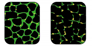 Muskeldystrophie ist eine Erbkrankheit, bei der Muskelgewebe abgebaut wird und dabei seine Funktionstüchtigkeit verliert. Bei dem betroffenen Muskel (rechts), hat der Muskel seine Struktur verloren und die Menge an Dystrophin (grün), einem für die Funktion des normalen Muskels wichtigem Protein, hat stark abgenommen. Cbenner12. CC BY-SA 3.0
