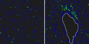 Reg3beta lockt weiße Blutkörperchen ins Infarktgebiet: Nach der Injektion von Reg3beta sind viel mehr grün eingefärbte Makrophagen in das Infarktgewebe eingewandert (rechts) als ohne Injektion (links). Zellkerne verschiedener Zellen sind blau gefärbt (weiße Linie: Blutgefäß). © MPI f. Herz- und Lungenforschung