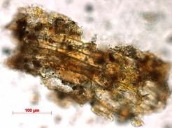 Pflanzenreste aus dem Zahnstein eines Menschen aus der El Mirón Höhle. © MPI f. evolutionäre Anthropologie/ R. Power