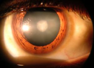 Beim grauen Star trübt sich die Linse so stark ein, dass sie oft entfernt und durch eine Kunstlinse ersetzt werden muss. Hier ein menschliches Auge. © Rakesh Ahuja. CC BY-SA 3.0