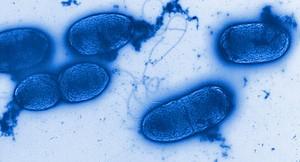 Pseudomonas aeroginosa-Infektionen sind bisher nur schwer behandelbar. Mittels eines neuartigen Models und einer Antibiotika-Kombination konnten HZI-Forscher nun Fortschritte in der Therapie erzielen. © Helmholtz-HZI.