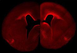 Das linke Teilbild zeigt die normale Stärke und zelluläre Verteilung der Aktivität von Pax6 im sich entwickelnden Neocortex. Das rechte Teilbild zeigt ein erhöhtes, Primaten-ähnliches Muster der Pax6-Aktivität im Neocortex eines doppelt transgenen Mäuseembryos. Diese Tiere besitzen mehr Pax6-positive Vorläuferzellen und höhere Pax6-Aktivität in der nahe am Ventrikel gelegenen Keimschicht. © MPI f. molekulare Zellbiologie & Genetik
