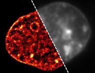 Das Bild der DNA einer Zelle, aufgenommen mit der am Institut für Molekulare Biologie entwickelten neuen superauflösenden Mikroskopietechnik, zeigt die DNA in scharfen Details (links). Im Gegensatz dazu ist das herkömmliche Mikroskopiebild verschwommen und macht eine Darstellung der auffälligen Veränderungen in der DNA, die von den Forschern am IMB entdeckt wurden, unmöglich (rechts). ©: Aleksander Szczurek, Ina Kirmes
