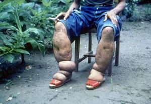 Beine eines an Elephantiasis Erkrankten. © public domain.