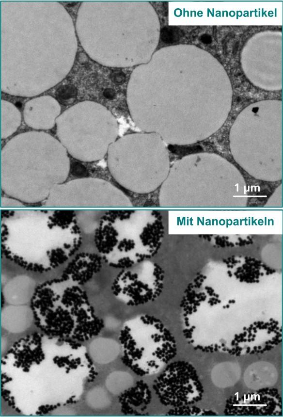Ausschnitt einer mikroskopischen Aufnahme einer menschlichen Fettzelle: oben unbehandelt, unten mit Gold-Nanopartikeln versetzt. Die Teilchen reichern sich in den Fetttropfen der Zelle an. © Foto Fraunhofer IBMT