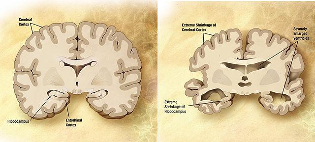 Vergleich des geirns eines an Alzheimer erkrankten Patienten (rechts) mit dem eines Gesunden. © public domain. Wikimedia Commons.