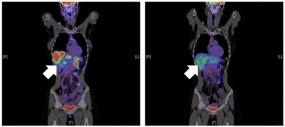 Das HIV-Medikament Maraviroc blockiert das Oberflächeneiweiß CCR5. Dadurch werden die Makrophagen in der Leber aktiviert die Metastasen zu bekämpfen. Die Metastasen in der Leber (links) verschwanden bei diesem Pateinten nach Behandlung (rechts). | © dkfz.de