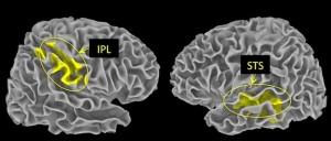 Der sogenannte Lobus parietalis inferior (IPL) im Scheitellappen bewertet negative, der Sulcus temporalis superior (STS) im Schläfenlappen interpretiert positive Ereignisse. Beide Gebiete sind Teil eines Netzwerks aus Nervenzellen, das dem Gehirn hilft, seine Umwelt zu beurteilen. © MPI f. Kognitions- und Neurowissenschaften