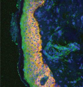 Die gemeine Schuppenflechte, auch Psoriasis vulgaris genannt, ist eine entzündliche Hautkrankheit. © Helmholtz Zentrum München